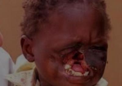 enfant atteint du noma