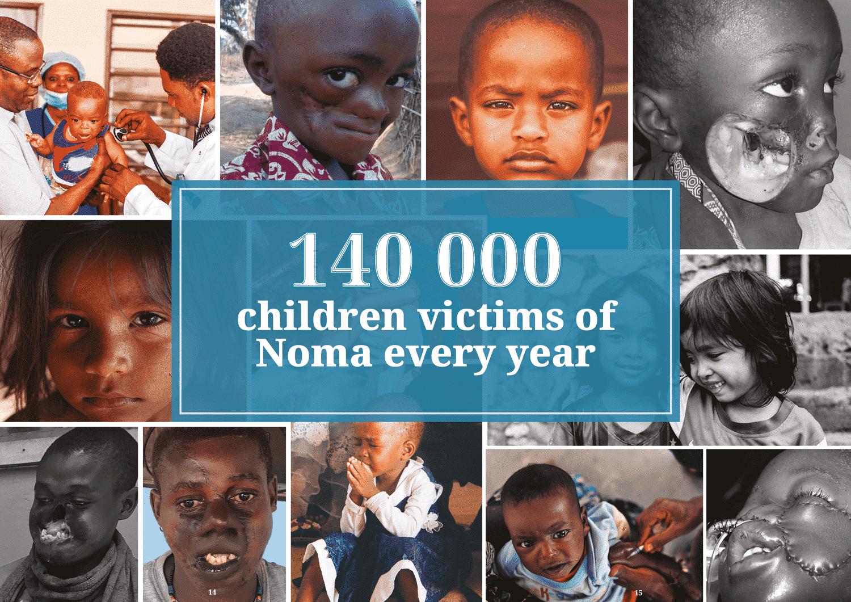 noma victims